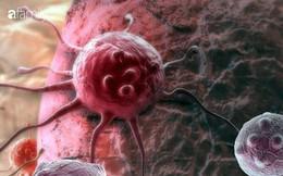 Tránh xa ngay 4 món ăn có nguy cơ gây ung thư luôn hiện hữu xung quanh bạn