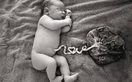 Bộ Y tế: Sinh con 'thuận tự nhiên' là phản khoa học, dễ tử vong cả mẹ và bé