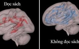 Nhìn bức ảnh chụp não bộ của hai đứa trẻ: thường xuyên đọc sách và thường xuyên xem điện thoại, cha mẹ sẽ biết mình nên làm gì với con