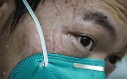 Trung Quốc công bố 1.716 nhân viên y tế đã nhiễm virus corona trong 'cuộc chiến sinh tử', chiếm 3,8% số ca bệnh cả nước