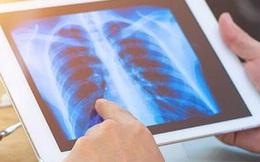 """Chuyên gia cảnh báo thói quen nhiều người Việt mắc """"dẫn đường"""" sớm tới ung thư phổi"""