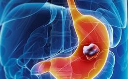 Phòng bệnh ung thư dạ dày: Khuyến cáo từ chuyên gia Bệnh viện K