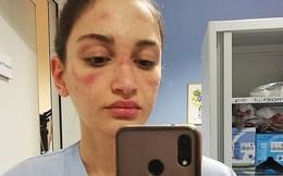 Thảm cảnh với y bác sĩ Vũ Hán tái diễn ở Italy: Nhân viên ý tế tím mặt vì đeo khẩu trang, ngủ gục trên bàn vì kiệt sức