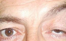 Sụp mi mắt - dấu hiệu của nhiều bệnh lý nguy hiểm