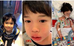 Bé trai 4 tuổi phải nằm viện 6 tháng vì bị nhiễm trùng máu và mắc bệnh do vi khuẩn ăn thịt, triệu chứng ban đầu chỉ là đau chân