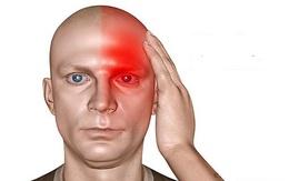 Ichoha và bí quyết khắc phục các triệu chứng đau nửa đầu của người Nhật