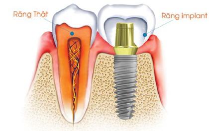 Tìm hiểu quy trình cấy ghép Implant ETK Active