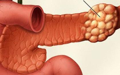 Cẩn thận với 3 dấu hiệu của căn bệnh ung thư có tỉ lệ mắc bệnh và tử vong tương đương nhau