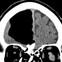 Một người đàn ông cho đến năm 84 tuổi mới biết mình bị rỗng não